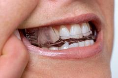 Somnomed mandibular advancement splint in the mouth